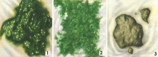 Зеленый кал