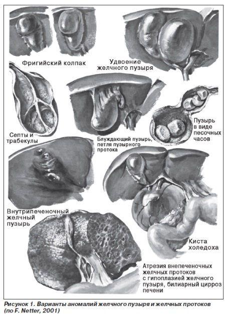 Деформации желчного