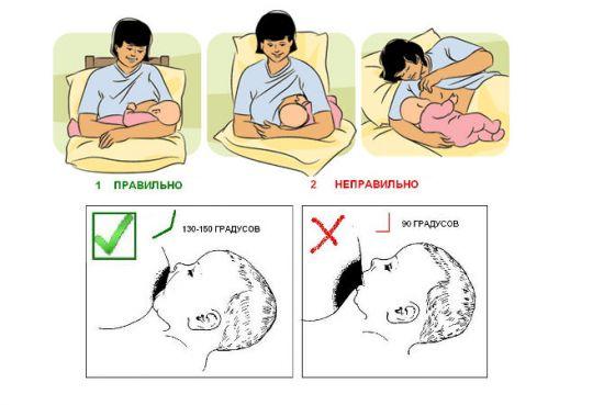 Прикладывание ребенка к груди