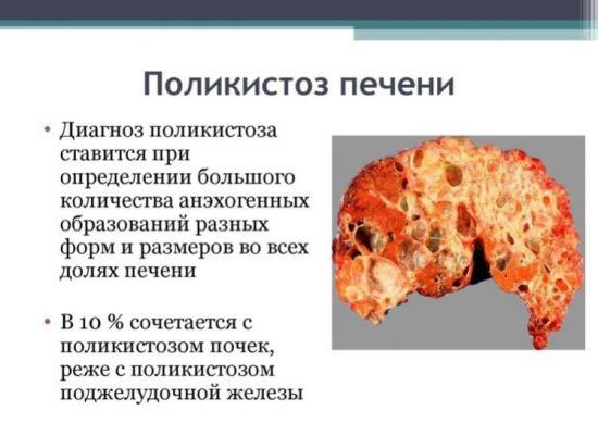 Поликистоз печени