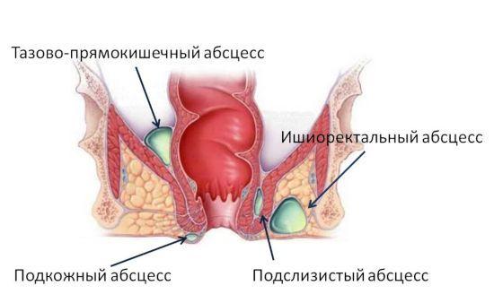 Абсцесс прямой кишки