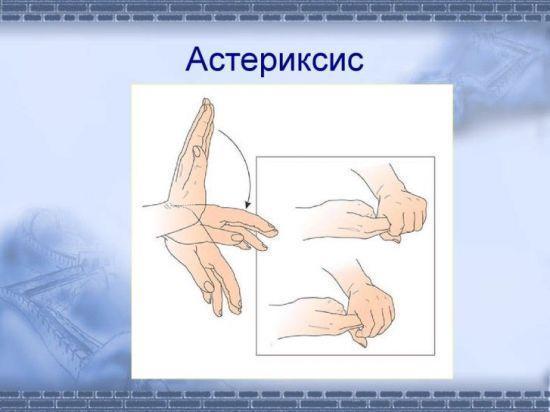 Подергивание руки