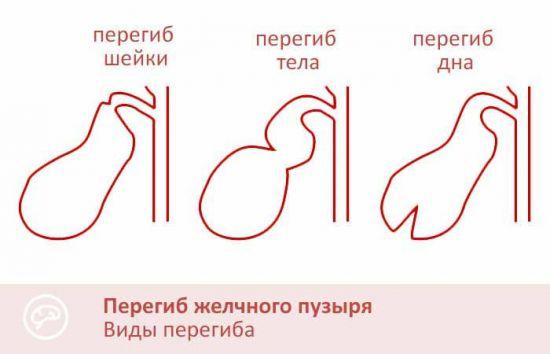 Перегиб желчного
