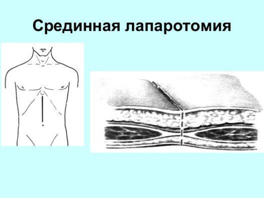 Разрез брюшной полости