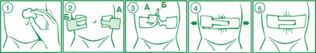 Как клеить пластырь на пупок