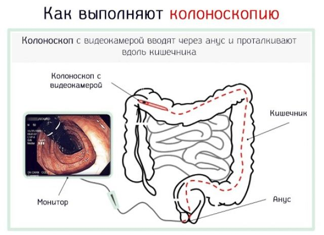 Как выполняют колоноскопию