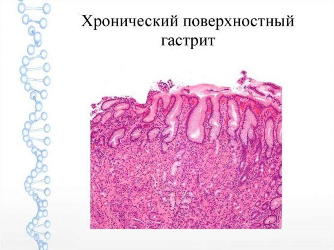 Хронический поверхносный гастрит