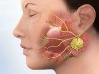Аденома слюнной железы