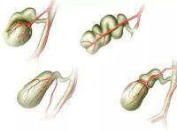 Деформация желчного пузыря у взрослых