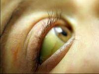Желтизна склер у ребенка