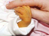 Желтуха у новорожденного