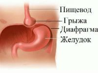 Грыжа пищевого отверстия диафрагмы