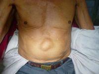 Лечение грыжи передней брюшной стенки
