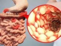 Воспаленные стенки кишечника