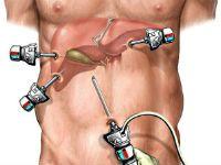 http://jktguru.ru/files/styles/inpost/public/field/image/laparoskopija-zhelpuz.jpg?itok=51mqcMgB