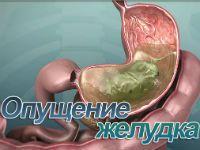 Опущение желудка
