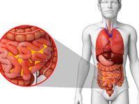 Воспаление брюшной полости