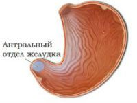 Антрум желудка