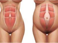 Мышцы живота при беременности