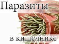 Паразиты в кишечнике
